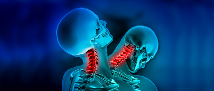 neck injuries in car collision When neck fusion is necessary after a car accident neck fusion surgery is a type of surgery that uses a variety of techniques to fuse bones back together in a high impact collision, the spinal discs can become dislodged, and the disc material can burst out of the disc.